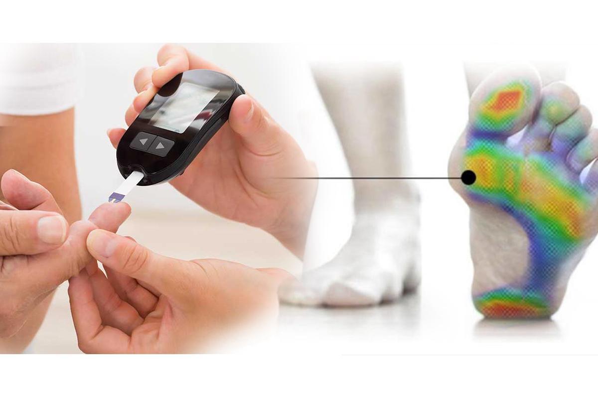 Esame Baropodometrico utile per i diabetici