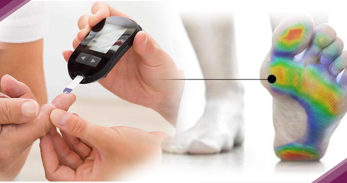Scienza: Esame Baropodometrico utile per i diabetici
