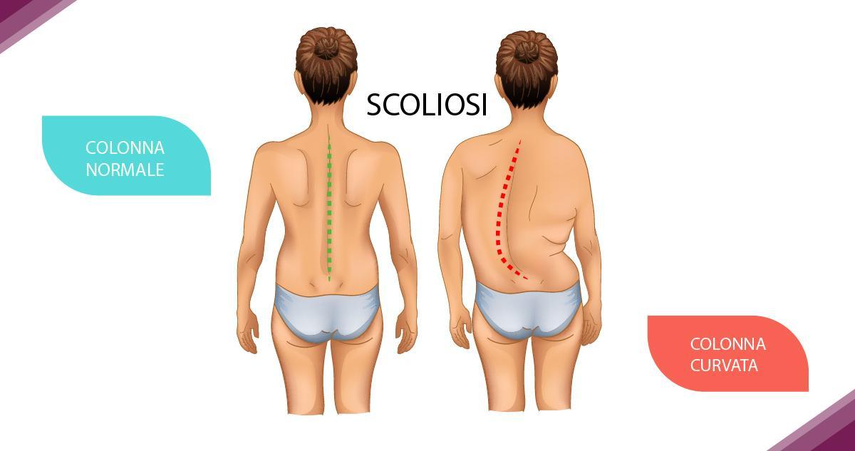 Scoliosi? Ecco come individuare i sintomi